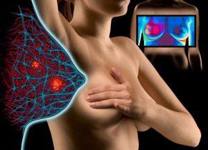 Олеогранулему молочной железы диагностируют инструментальными методами