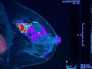 Как выглядит инвазивная карцинома молочной железы