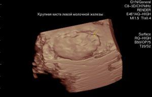 Как выглядит киста в молочной железе