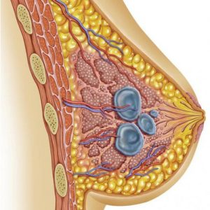Виды кист в молочной железе