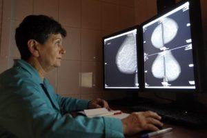 Может ли мастопатия перейти в рак