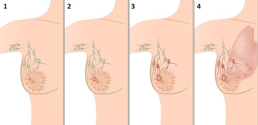 Как проверить грудь 7 фотография