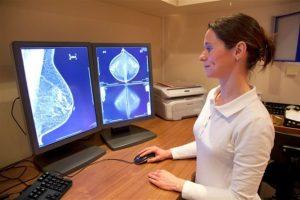 Причины и диагностика дуктэктазии молочных желез