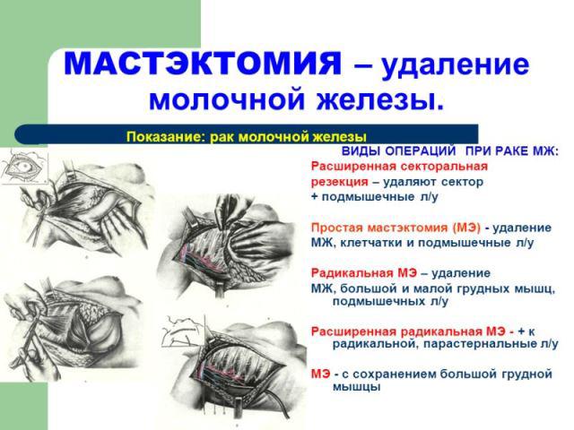 Виды мастэктомии
