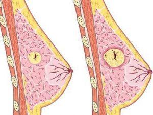 Чем отличается доброкачественная опухоль груди от злокачественной