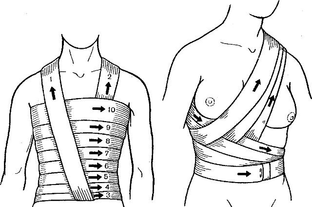 Наложение повязки на грудь