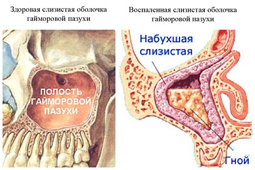 Развитие гайморита у женщины в период лактации