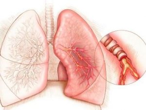 Почему появляется кашель