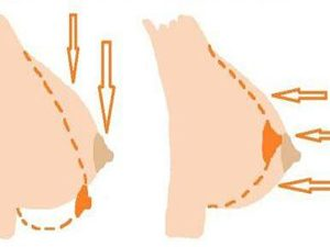 Почему провисает грудь
