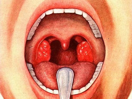 Почему развивается ангина
