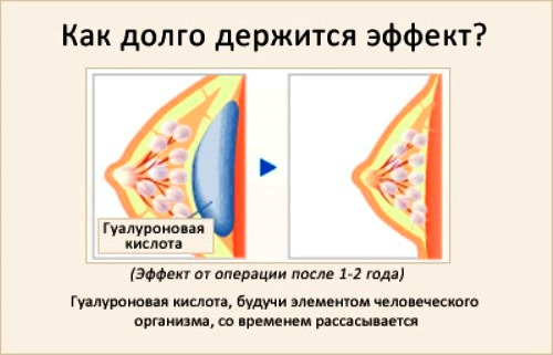 Эффект операции по увеличению груди гиалуроновой кислотой