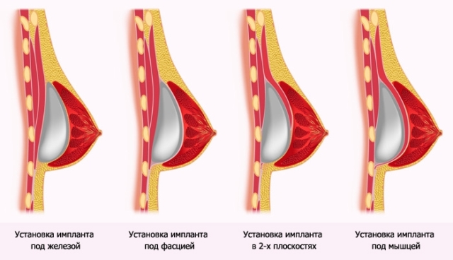Способы установки импланта