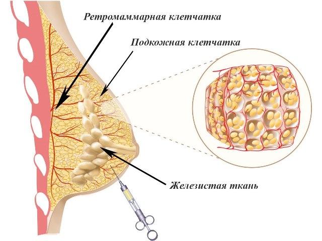 Введение гиалуроновой кислоты при увеличении груди