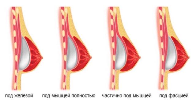 Расположение грудных имплантов
