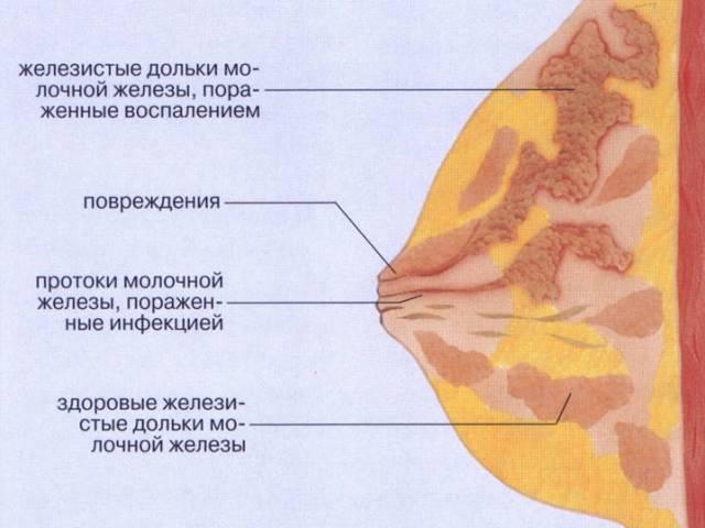Воспаление молочной железы у кормящей мамы