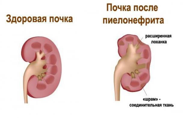 Пиелонефрит после родов