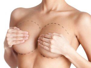 Маммопластика при мастопатии