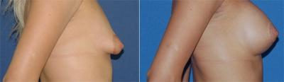 пластика тубулярной груди