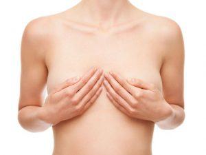 Гипоплазия молочной железы