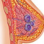 Киста или фиброаденома молочной железы