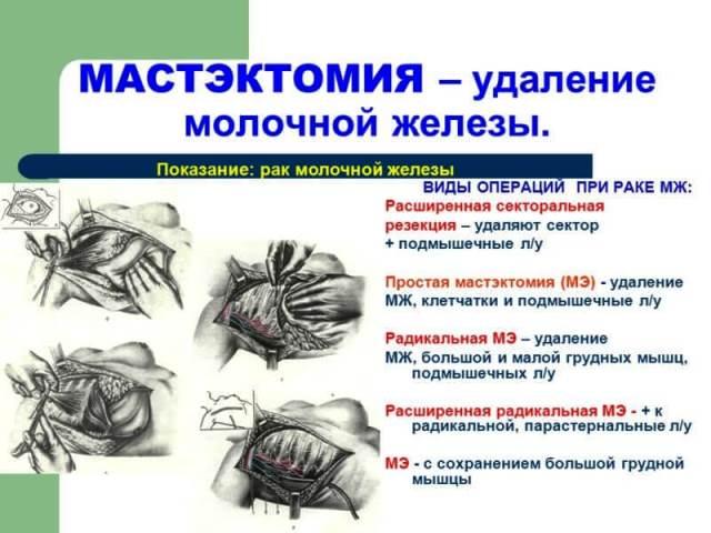 Мастэктомия при раке молочной железы
