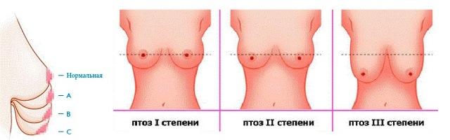 Степени обвисания груди
