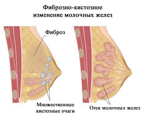 Поликистоз молочных желез