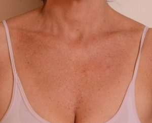 пигментация груди