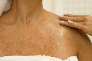 пигментные пятна на груди