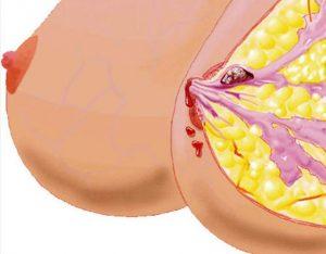 Полипы в молочной железе