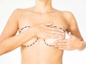 Складки под грудью